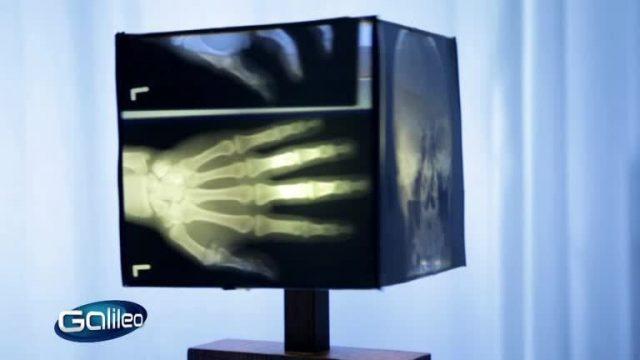 Silber aus dem Röntgenbild