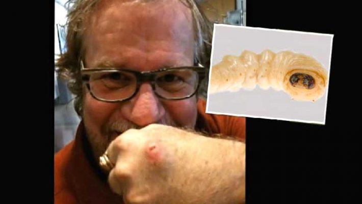 Man ist wieviel Mal, die Fäkalie auf der Würmer abzugeben