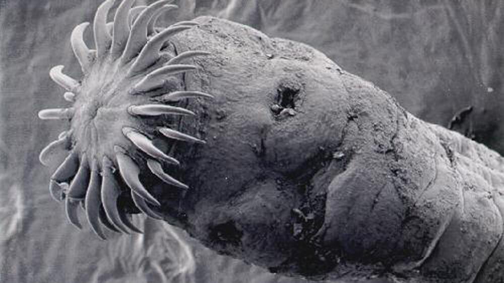 Die Präparate für die Behandlung der Parasiten