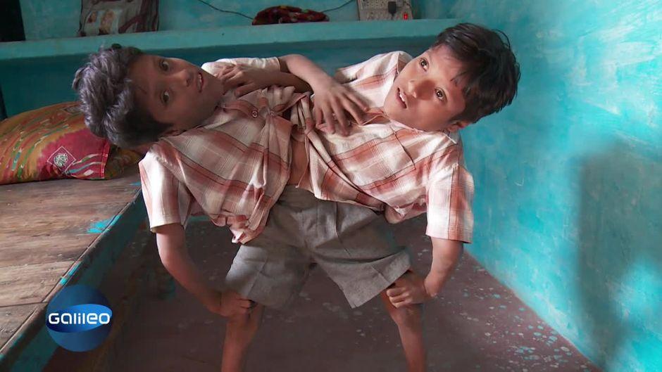 Das Einzigartige Zwillingsduo Aus Indien