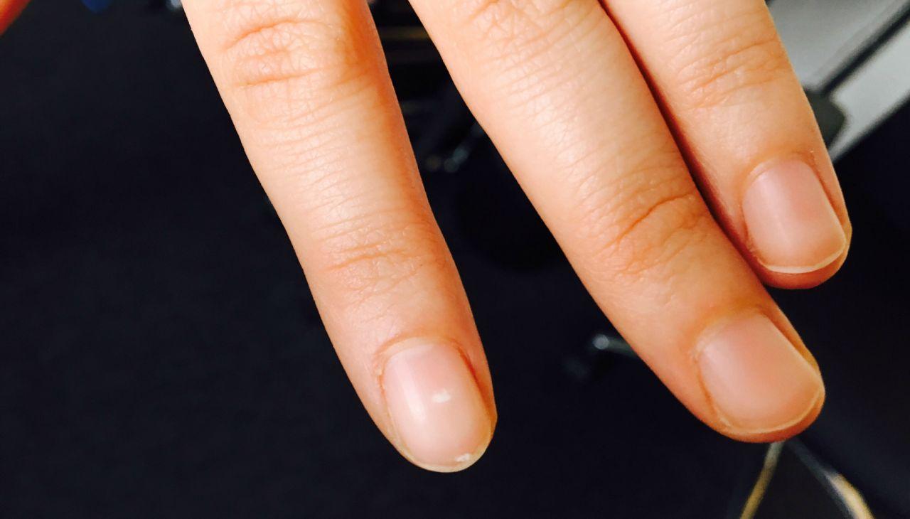 Das Bedeuten Die Weissen Linien Auf Deinen Fingernageln Wirklich