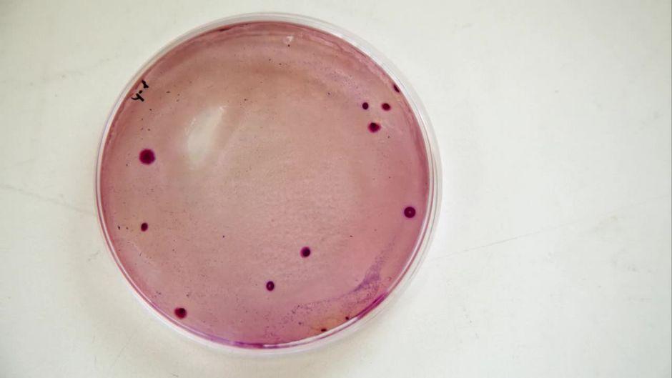 Salmonellen-Gefahr um das 2400-fache erhöht: Bei diesem Lebensmittel muss man aufpassen