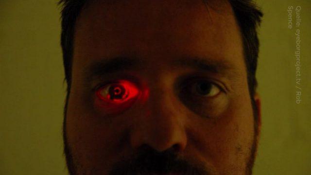 Eyeborg: Dieser Mann hat seinen Augapfel durch eine Kamera ersetzt