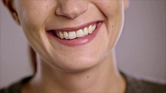Genial! Mit diesem Hausmittel werden deine Zähne weißer