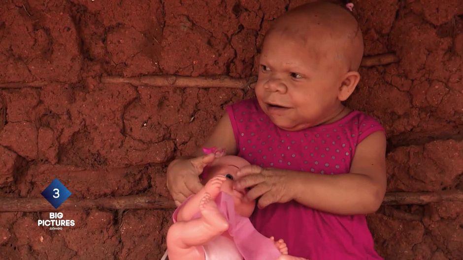 Das ewige Baby: Diese Frau hat für immer den Körper einer Zweijährigen