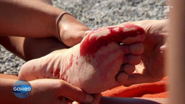 Dieser Trick hilft bei einer offenen Wunde am Strand