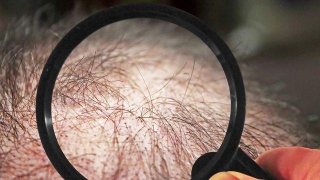 Haben Wissenschaftler eine Heilung für Haarausfall gefunden?