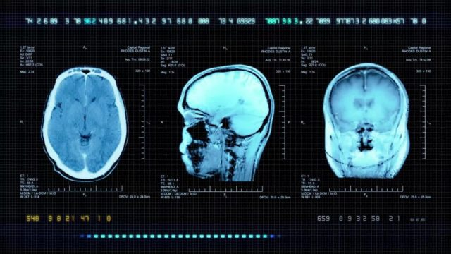 Forscher bestätigen: Nach einer Kopfverletzung könnte man zum Mörder werden