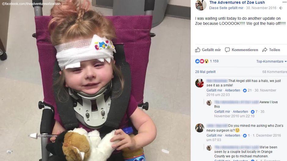 Mit Knochenbrüchen geboren: Ärzte gaben Zoe keine Chance - so sieht sie heute aus