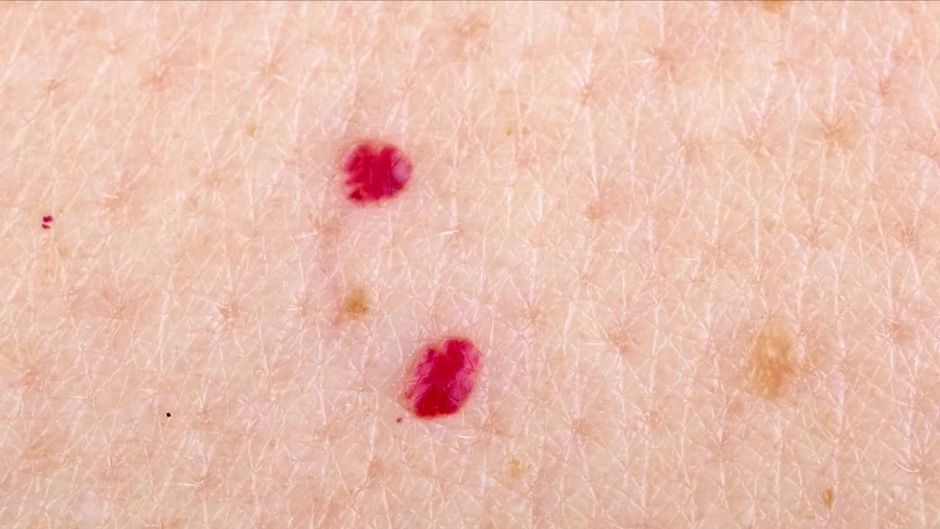 Red blood spots on breast