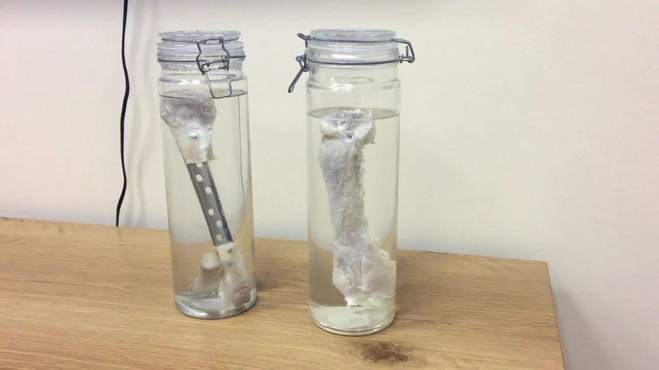 Medizinische Sensation: Forscher setzen Patienten gezüchteten Knochen ein