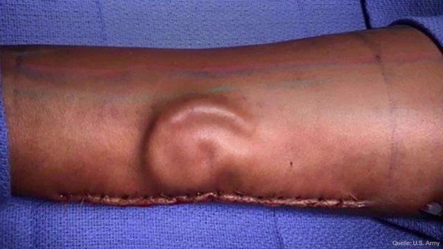 Eine Frau verliert das linke Ohr - doch ihr wird ein neues Ohr im Unterarm gezüchtet