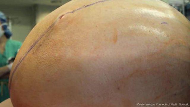 Schock-OP: Frau wird 60 Kilo schwerer Tumor entfernt