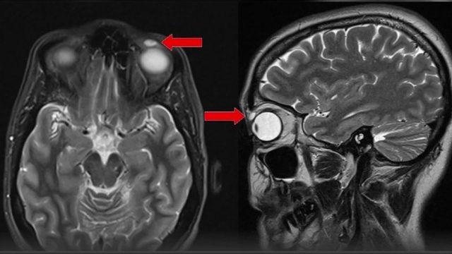 Frau verliert Kontaktlinse - Ärzte finden sie 28 Jahre später in ihrem Augenlid