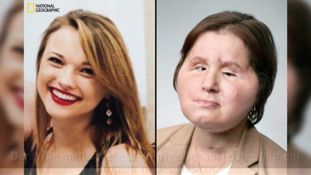 Nach einem Kopfschuss bekommt Katie (18) eine Gesichts-Transplantation