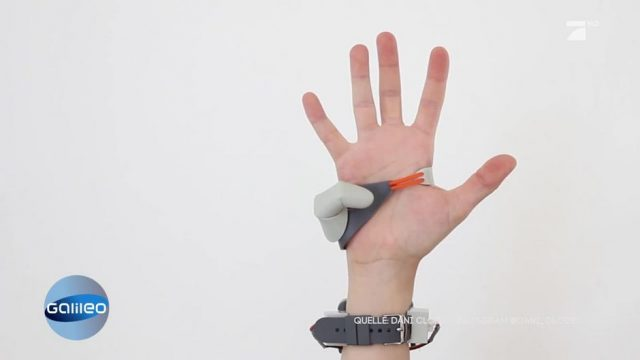 Dritter Daumen: Studentin entwickelt neuartige Prothese