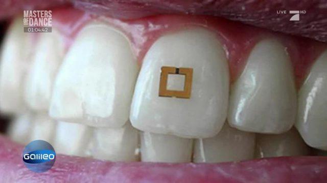 Finde die Fake-News: Zahn-Sensor zählt Kalorien