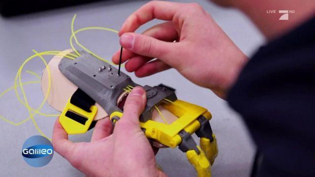 Handprothese im Eigenbau: Wie eine außergewöhnliche Idee Hoffnung für viele bedeutet