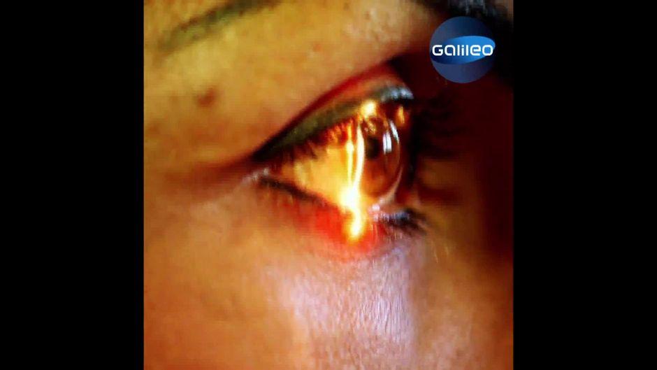 Von Braun zu Grün: So funktioniert eine Augen-Tätowierung
