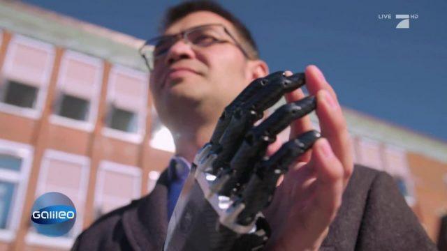 Einzigartige High-Tech-Revolution: Prothesen mit Fingerspitzengefühl