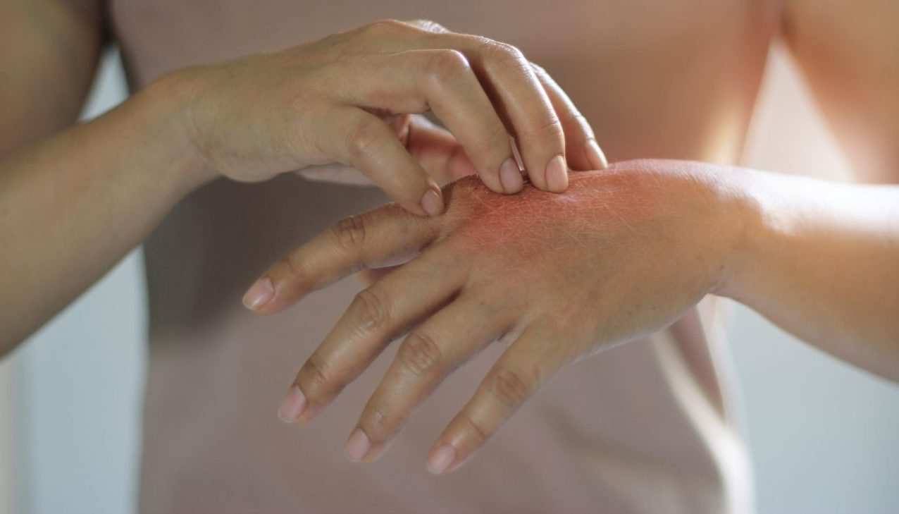 Was würdest du tun, wenn du gegen dich selbst allergisch wärst?