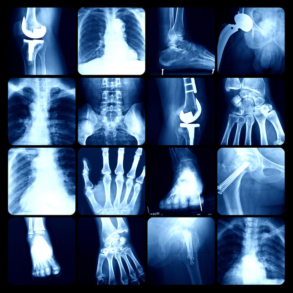 Röntgen-Strahlen