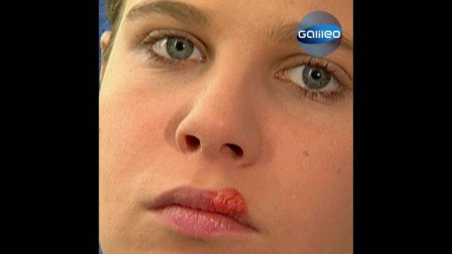Bläschen-Alarm - Das kannst du gegen Herpes tun