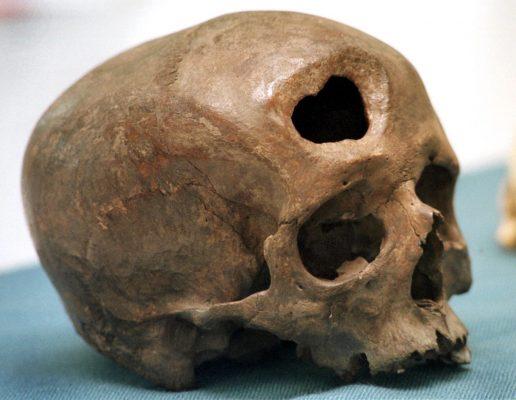 Ein etwa 5000 Jahre alter Schädel belegt, die Operationen am Kopf.