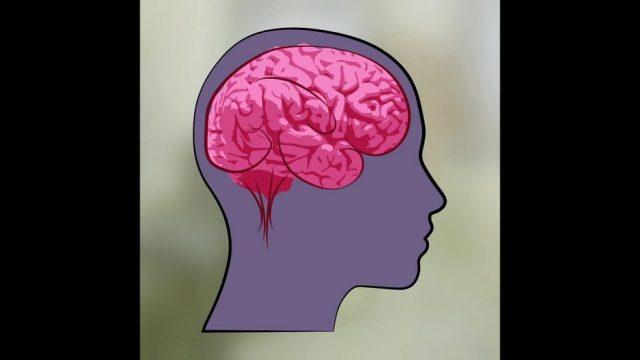 Migräne: Was ist das und was hilft? - 10s