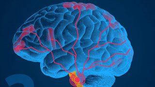 Bei Migräne gibt es eine Entzündung im Gehirn