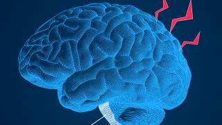 So wirkt Migräne in deinem Gehirn