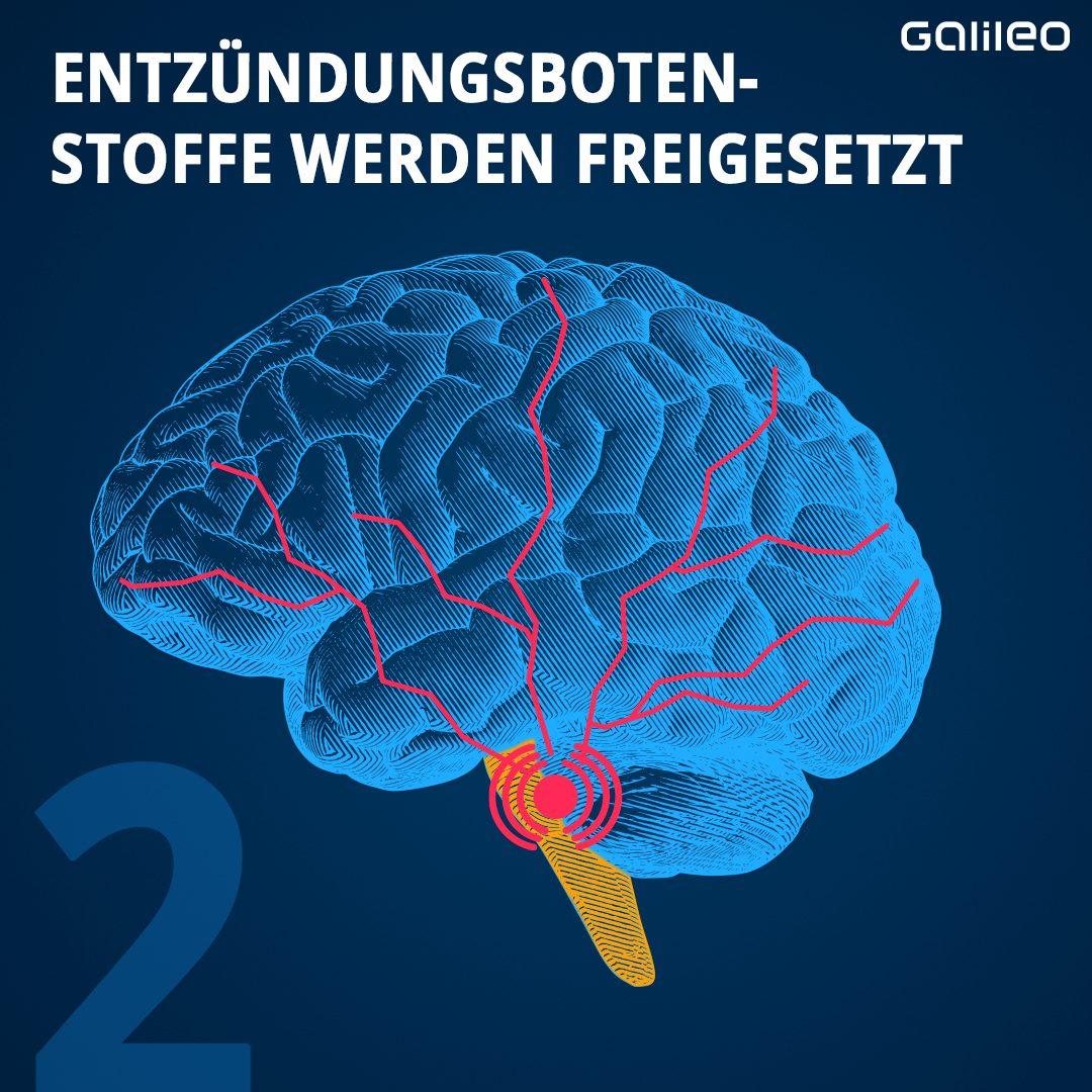 Bei Migräne werden Entzündungsbotenstoffe freigesetzt