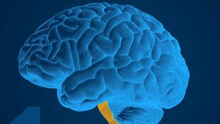 Bei Migräne ist der Gehirnstamm überreizt