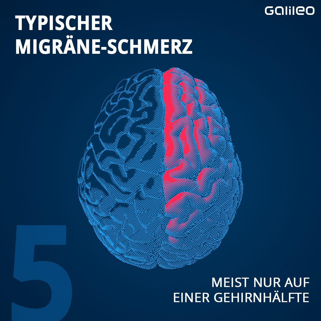 Migräneschmerz