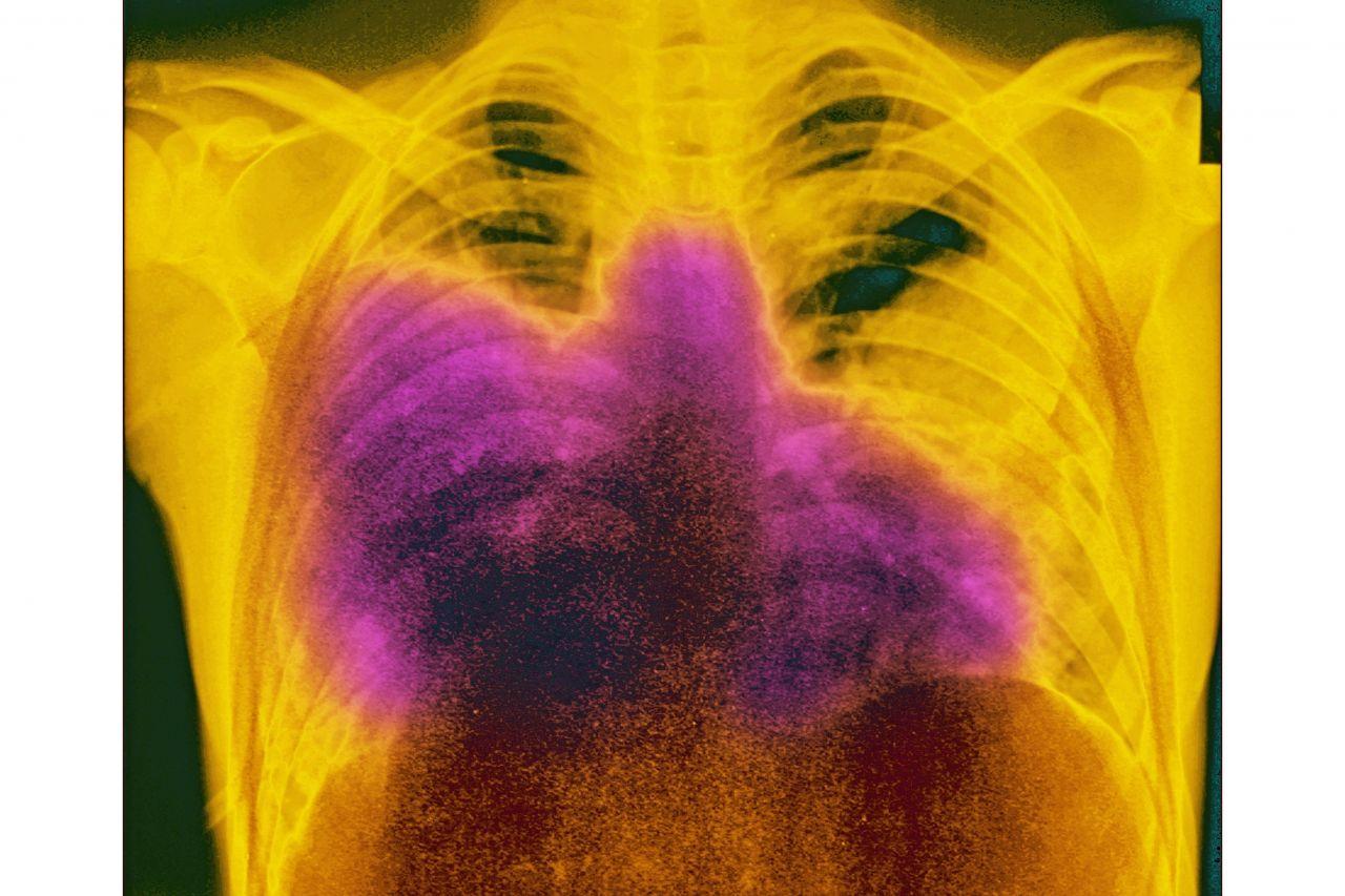 Lunge, Legionellen, Legionella