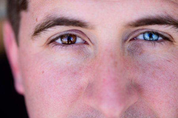 Rassismus im Alltag: Mann hat ein braunes und ein blaues Auge.