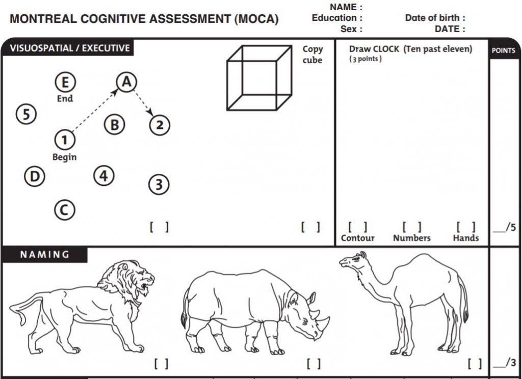 MoCA-Test Version aus 2004.