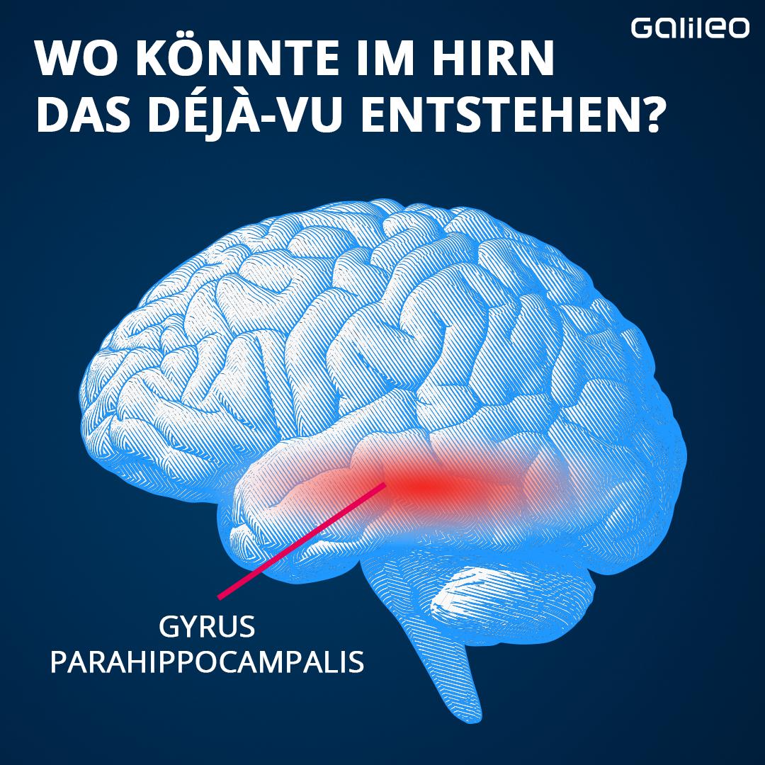Deja-vu im Gehirn