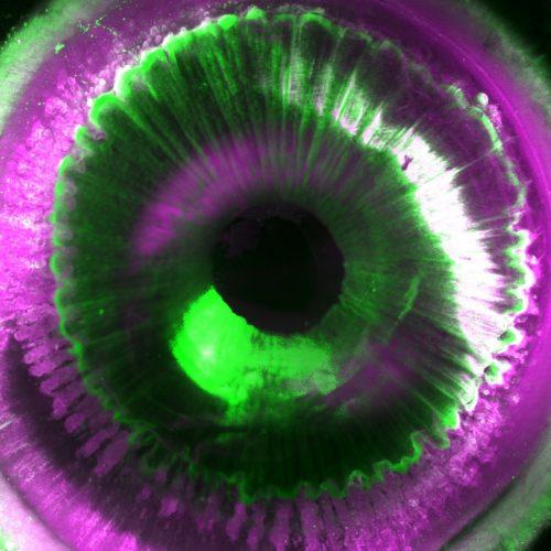 Schau mir in die Augen! Die SHANEL-Technik ermöglicht Einblick in die Strukturen des Sehorgans.