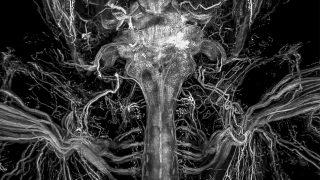 durchsichtige Organe
