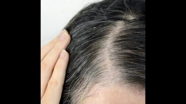 Aimans Antwort: Warum werden Haare grau? - 10s