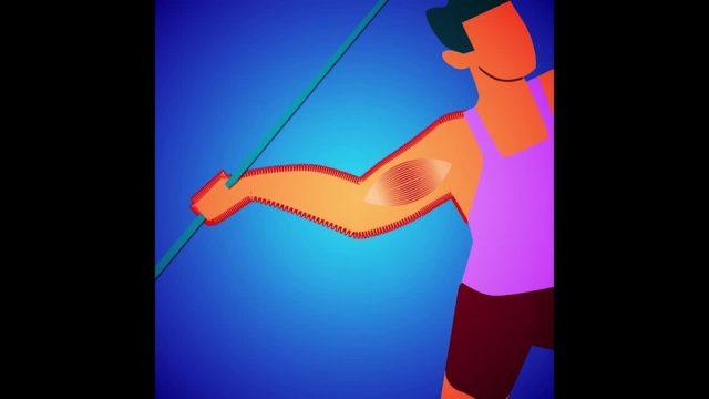 Was passiert bei einem Muskelkrampf? - 10s
