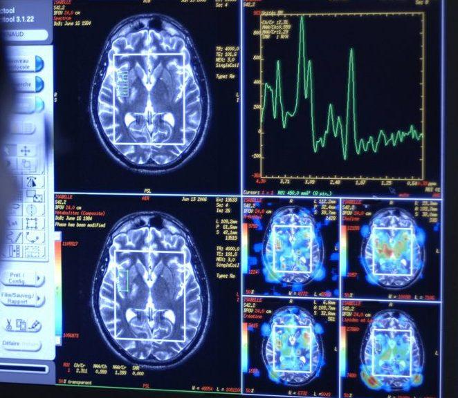 Gehirn: Wie deine oberste Steuerzentrale funktioniert