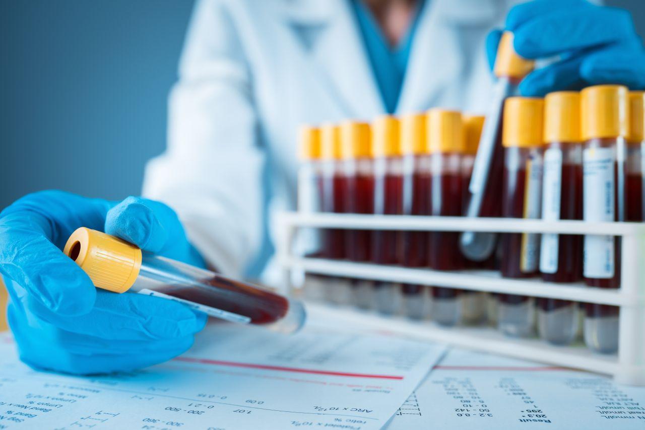 Corona Immunität: Wie lange ist man nach einer Infektion