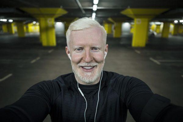 Mann mit Albinismus