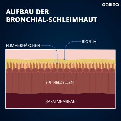 Aufbau der Bronchial-Schleimhaut