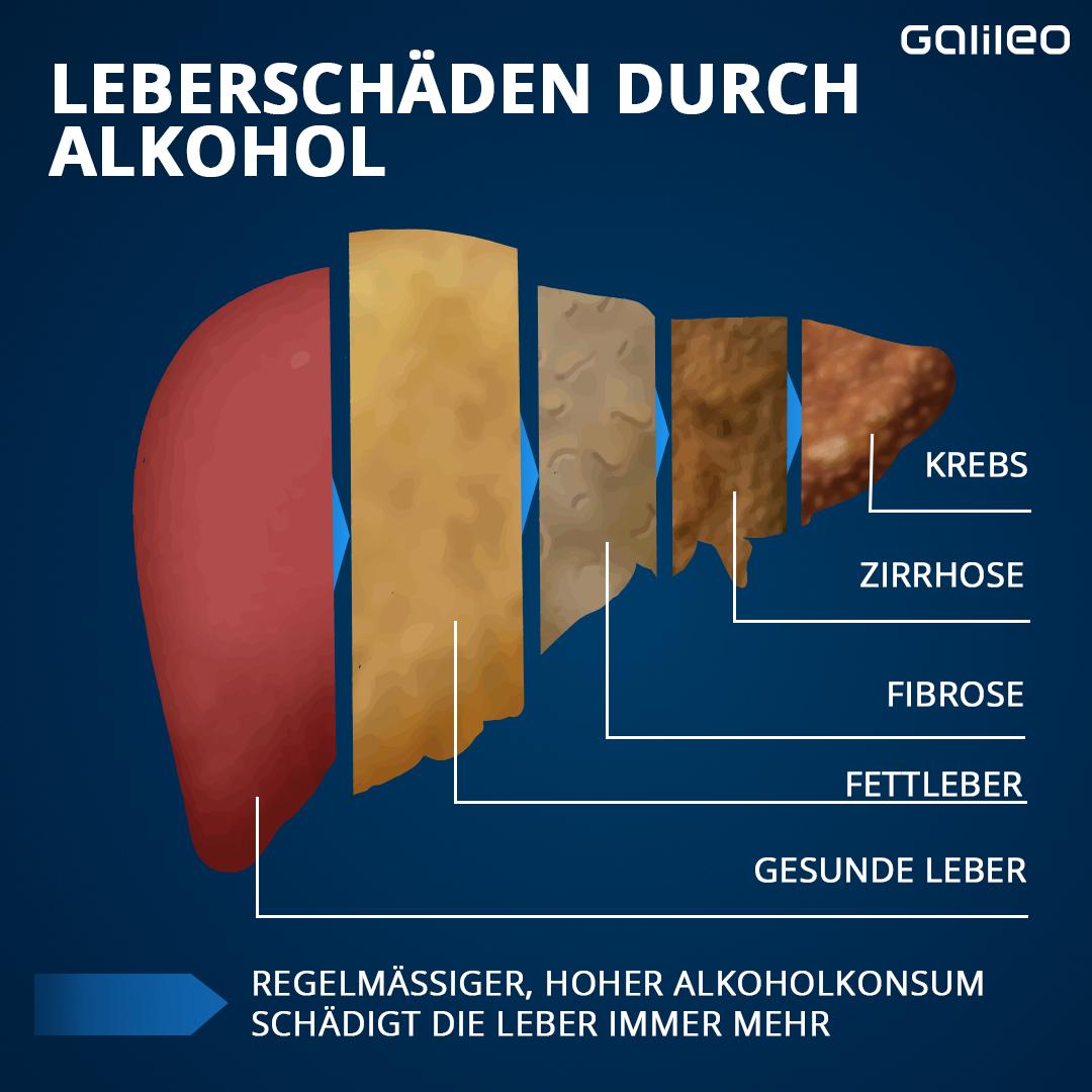 Leberschäden durch Alkohol