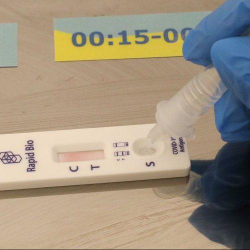Mit dem Ende der Gratis-Tests seit dem 11. Oktober sind Corona-Schnelltests nicht mehr generell kostenlos.